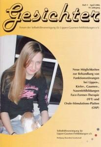 Artikelvorschau: Neue Möglichkeiten zur Behandlung von Funktionsstörungen bei Lippen-, Kiefer-, Gaumen-, Nasenfehlbildung