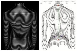 Funktionelle Wirbelsäulen- und Haltungsanalyse mit DIERS Formetric 4D