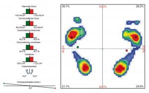 Statische & dynamische Fußdruckmessung mit DIERS Pedoscan